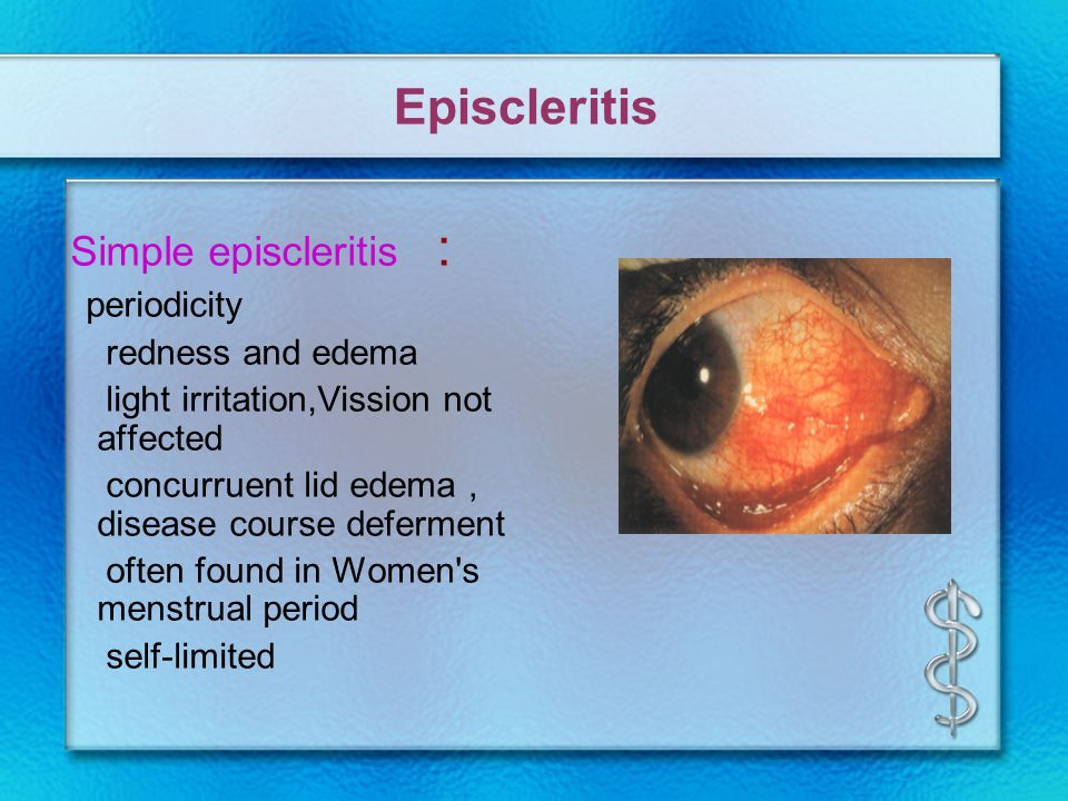 Episcleritis Simple episcleritis : periodicity redness and edema light irritation,Vission not affected concurruent lid edema , disease course deferment often found in Women s menstrual period self-limited