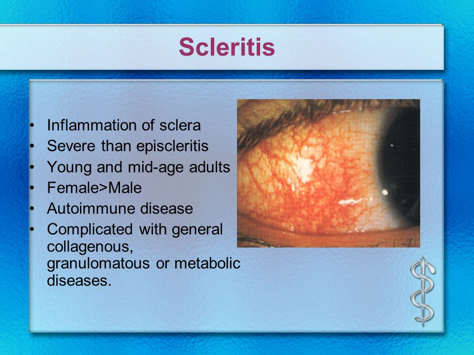 Scleritis Inflammation of sclera Severe than episcleritis Young and mid-age adults Female>Male Autoimmune disease Complicated with general collagenous, granulomatous or metabolic diseases.