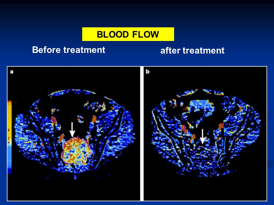 Before treatment after treatment BLOOD FLOW