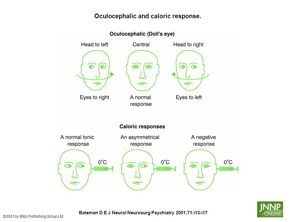 Oculocephalic and caloric response. Bateman D E J Neurol Neurosurg Psychiatry 2001;71:i13-i17 ©2001 by BMJ Publishing Group Ltd