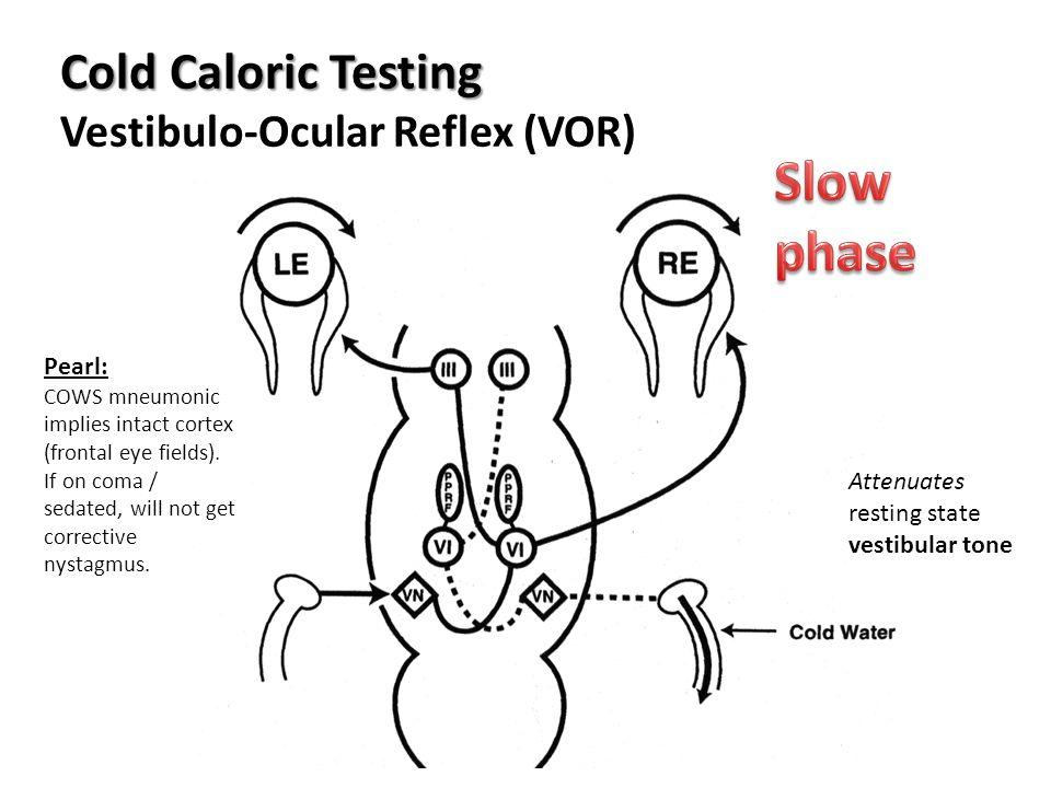 Cold Caloric Testing Cold Caloric Testing Vestibulo-Ocular Reflex (VOR) Attenuates resting state vestibular tone Pearl: COWS mneumonic implies intact