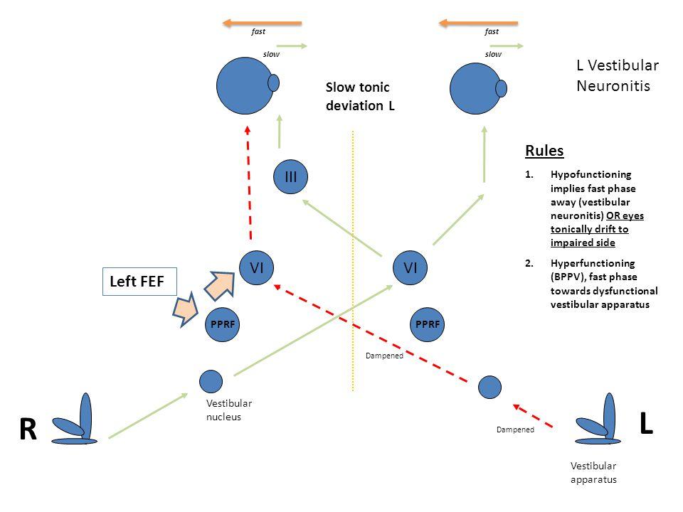 Vestibular nucleus PPRF VI L Vestibular Neuronitis Dampened Slow tonic deviation L Left FEF PPRF VI Rules 1.Hypofunctioning implies fast phase away (v