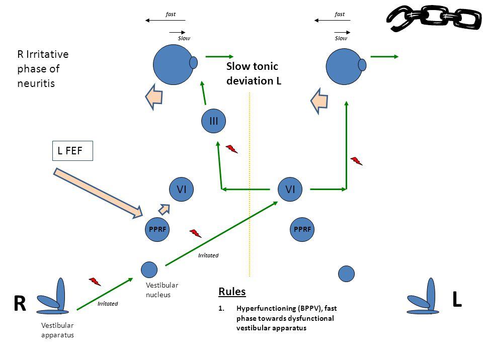 Vestibular apparatus Vestibular nucleus PPRF VI R Irritative phase of neuritis Irritated Slow tonic deviation L Slow L FEF PPRF VI Rules 1.Hyperfuncti