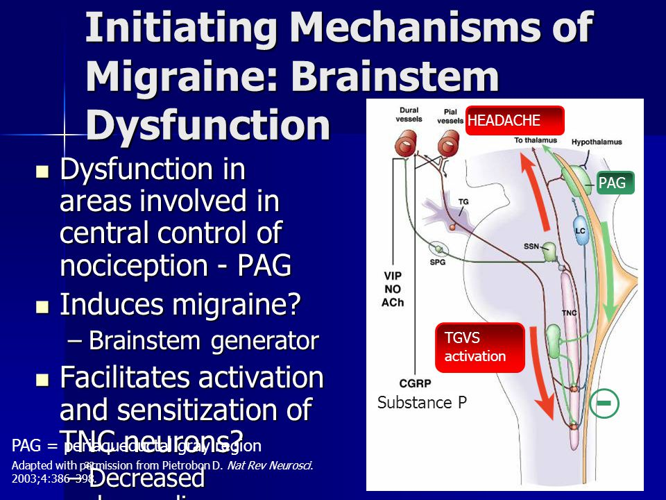 32 Initiating Mechanisms of Migraine: Brainstem Dysfunction Dysfunction in areas involved in central control of nociception - PAG Dysfunction in areas involved in central control of nociception - PAG Induces migraine.