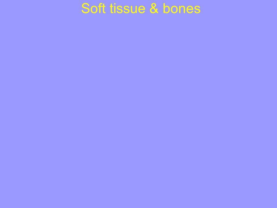 Soft tissue & bones
