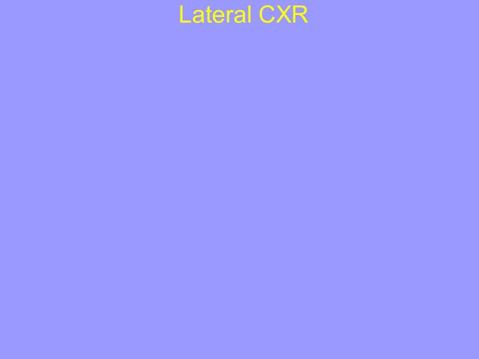 Lateral CXR