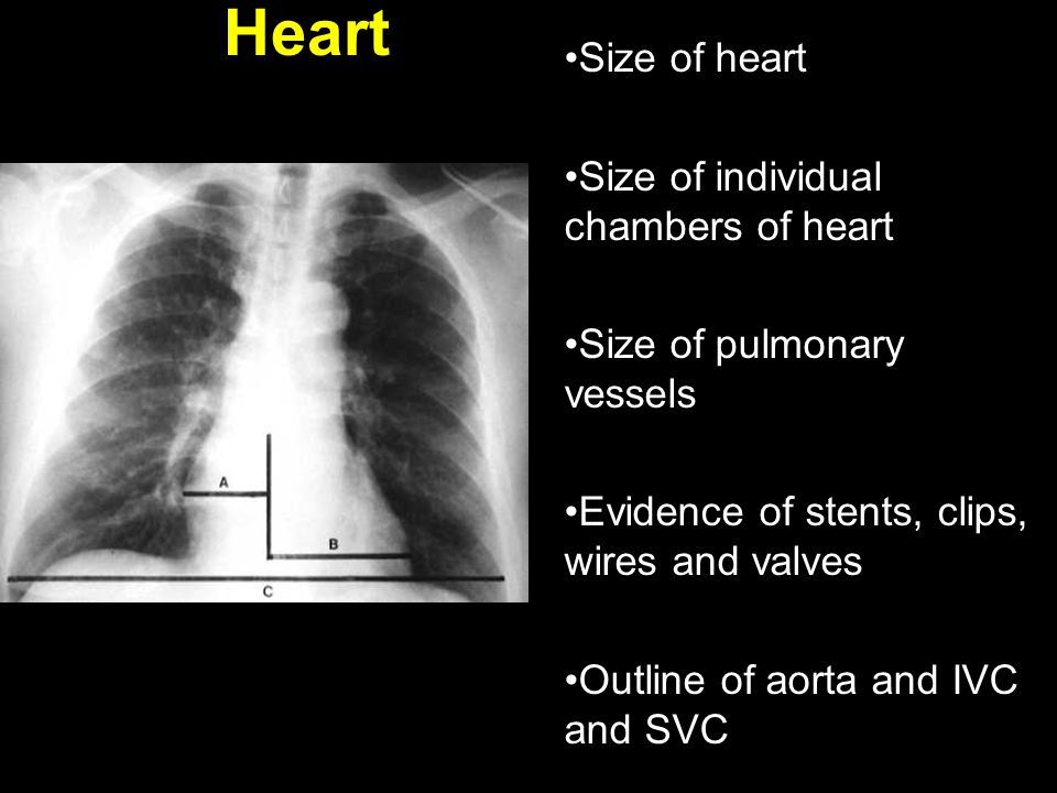 Heart Size of heart Size of individual chambers of heart Size of pulmonary vessels Evidence of stents, clips, wires and valves Outline of aorta and IV