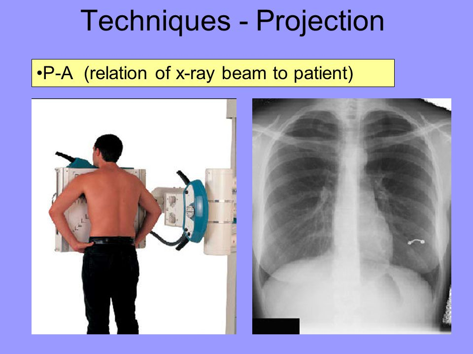 Techniques - Projection P-A (relation of x-ray beam to patient)
