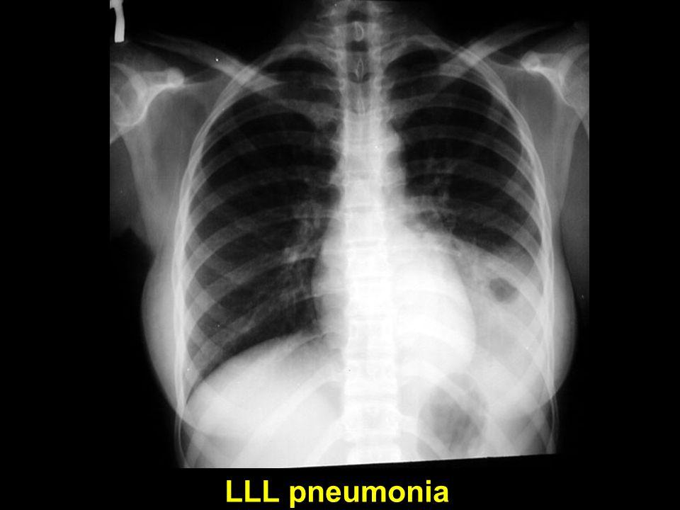LLL pneumonia
