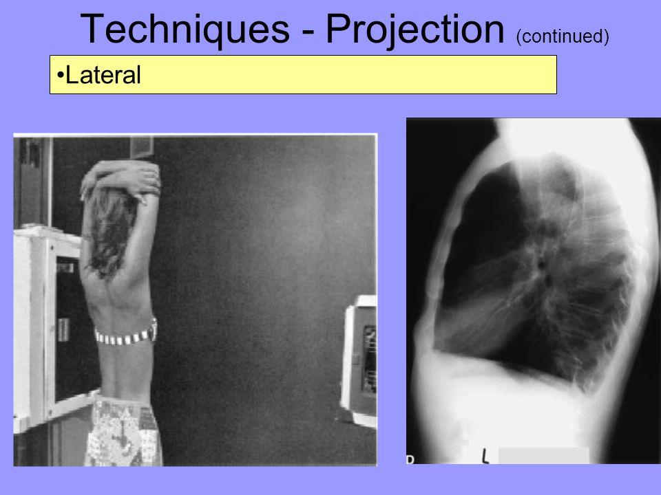 Techniques - Projection (continued) Lateral Decubitus