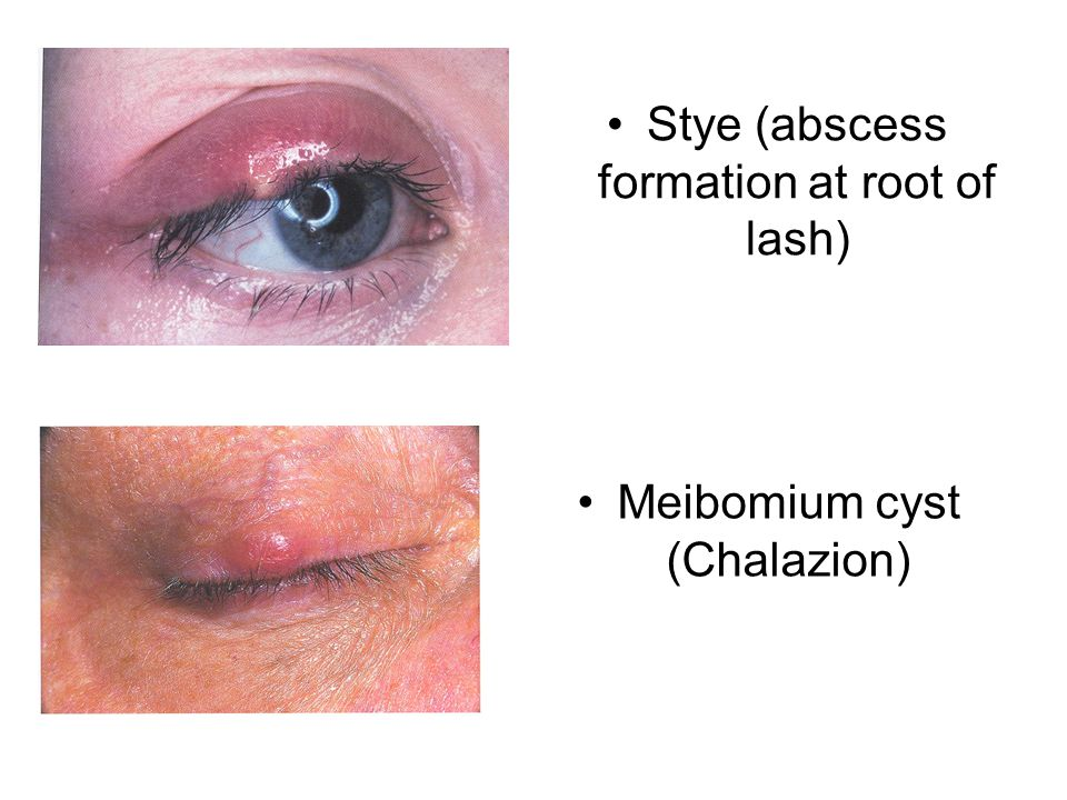 Meibomium cyst (Chalazion) Stye (abscess formation at root of lash)