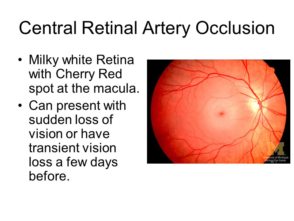 Central Retinal Artery Occlusion Milky white Retina with Cherry Red spot at the macula. Can present with sudden loss of vision or have transient visio