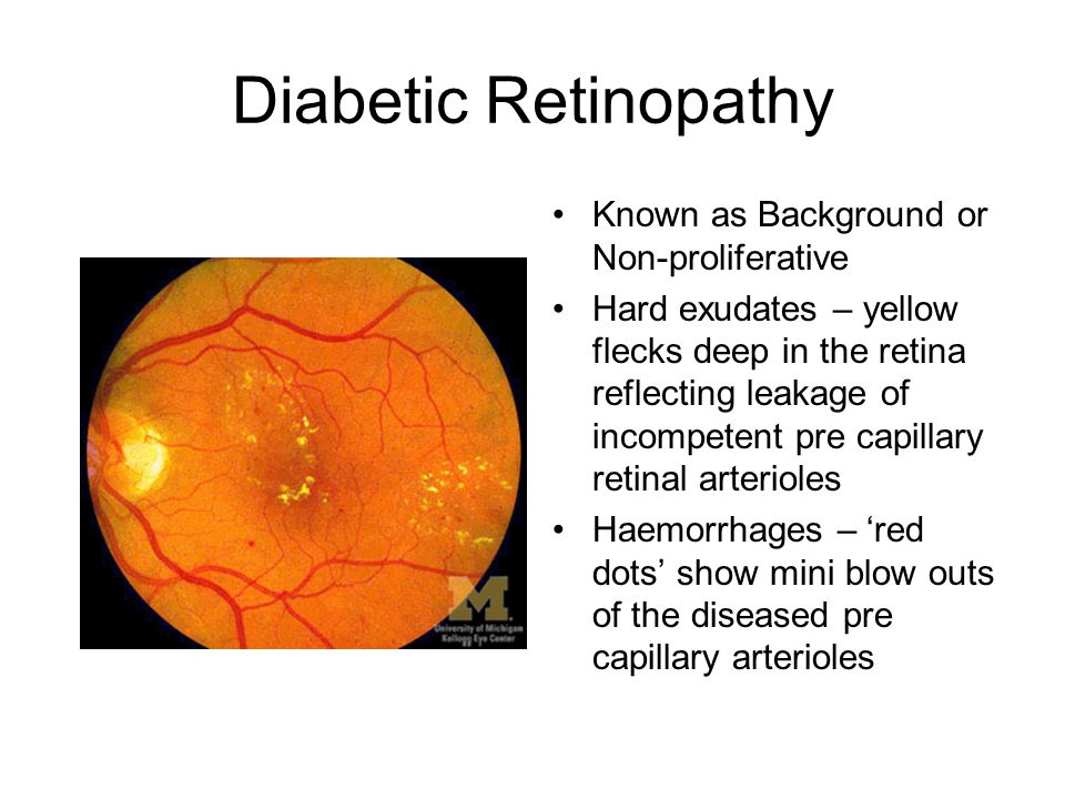 Diabetic Retinopathy Known as Background or Non-proliferative Hard exudates – yellow flecks deep in the retina reflecting leakage of incompetent pre c