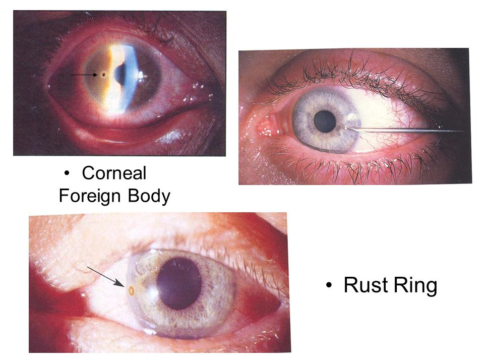 Corneal Foreign Body Rust Ring