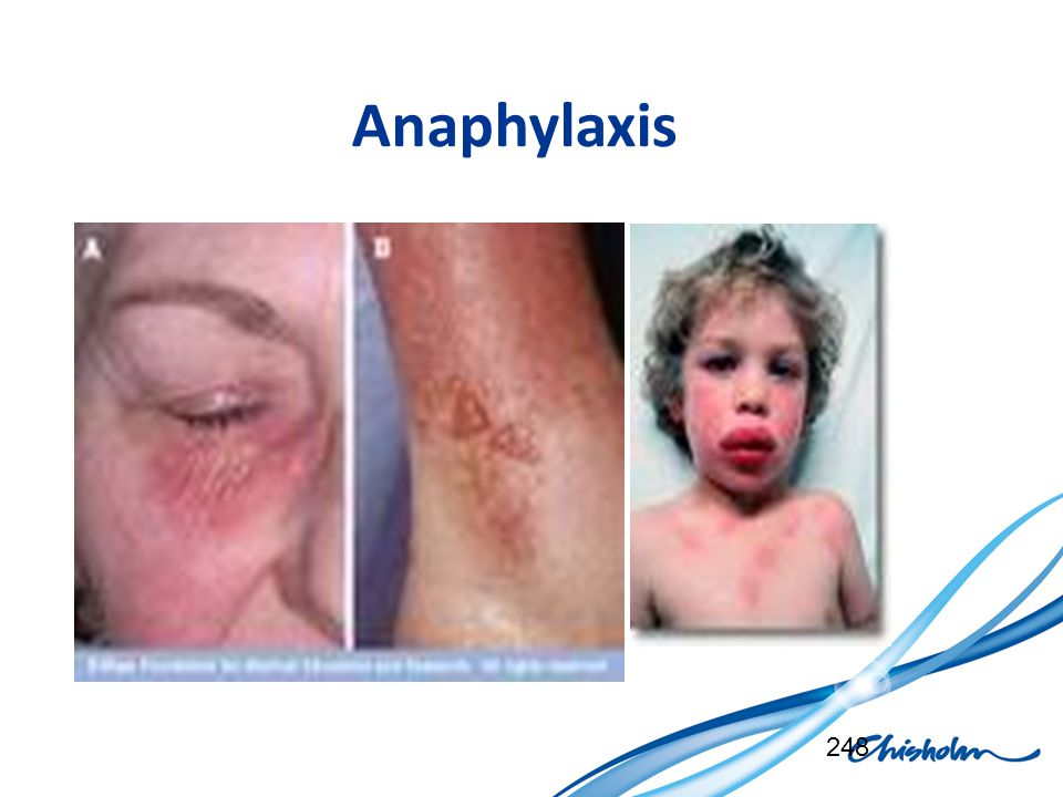 Anaphylaxis 248