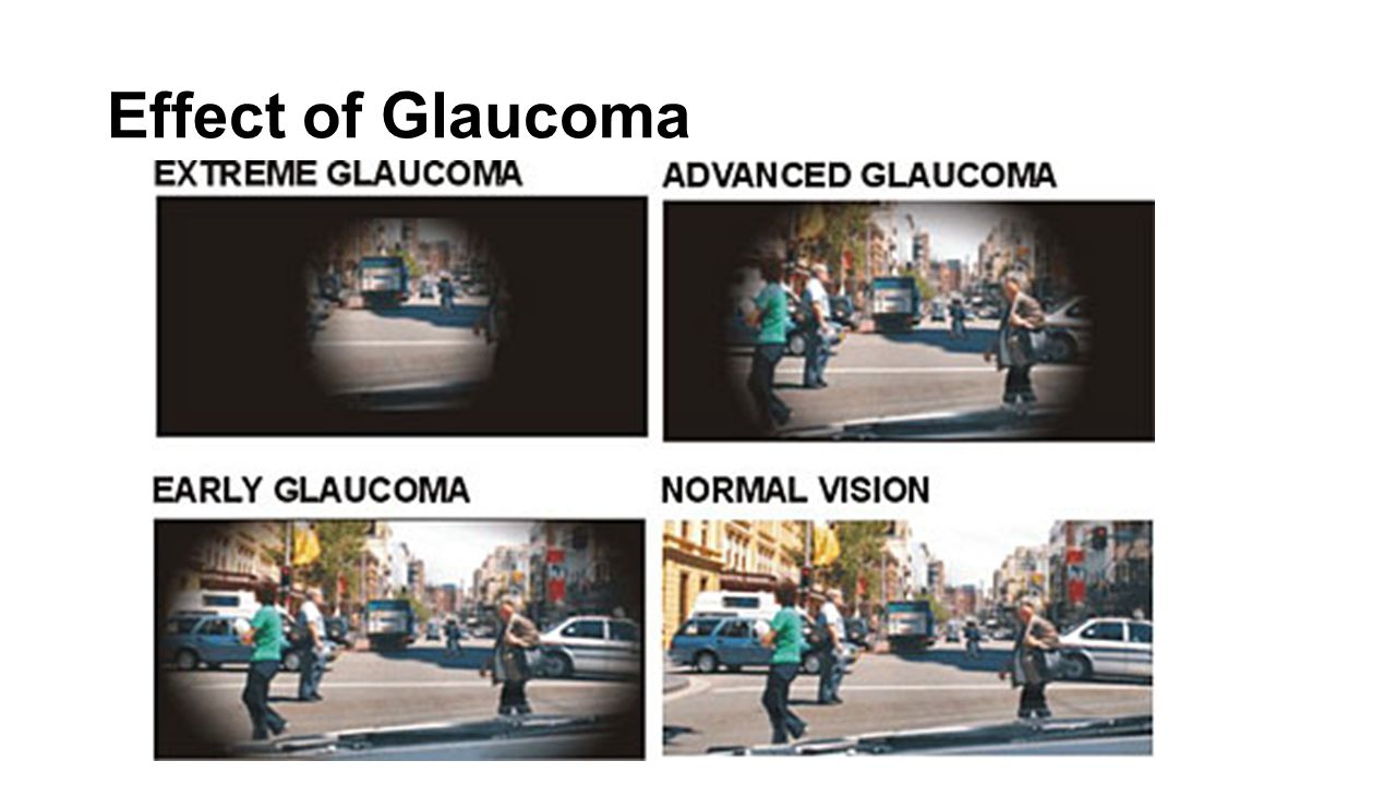 Classification Two main categories of primary glaucoma: Open-angle glaucoma: the most common form of glaucoma Closed-angle glaucoma: a less common and more urgent form of glaucoma