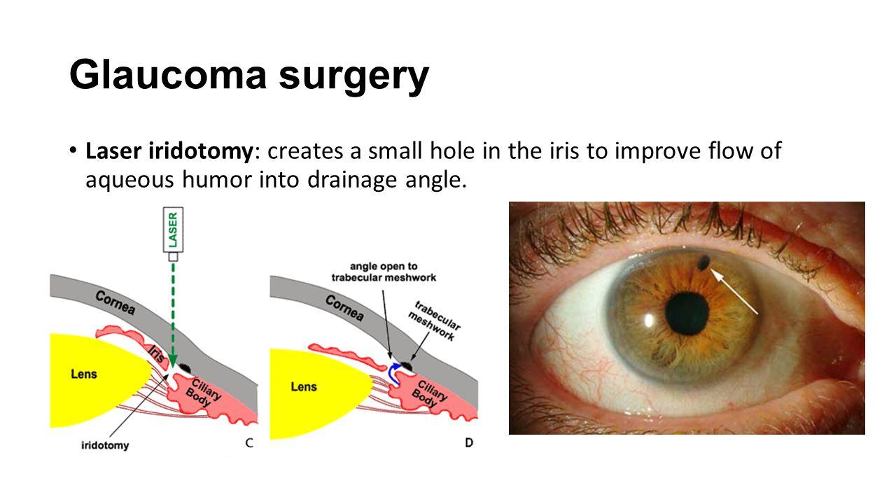 Glaucoma surgery Laser iridotomy: creates a small hole in the iris to improve flow of aqueous humor into drainage angle.