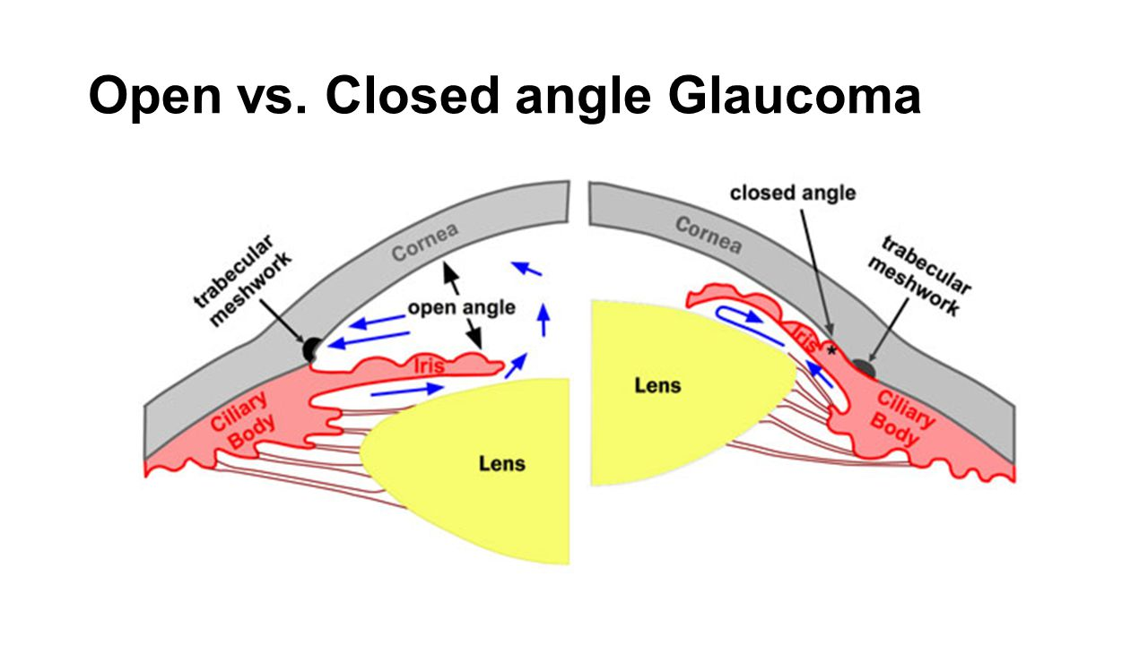 Risk factors for glaucoma include: Age Family history Elevated eye pressure (IOP) Nearsightedness or farsightedness African, Hispanic or Asian ancestry Diabetes Previous eye injury Thin cornea