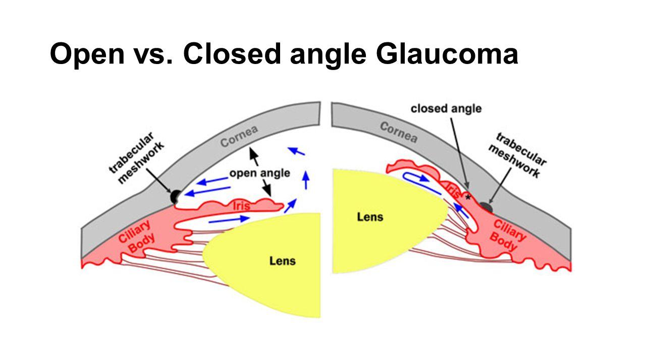 Open vs. Closed angle Glaucoma