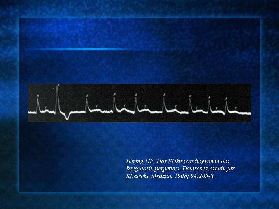Hering HE. Das Elektrocardiogramm des Irregularis perpetuus.