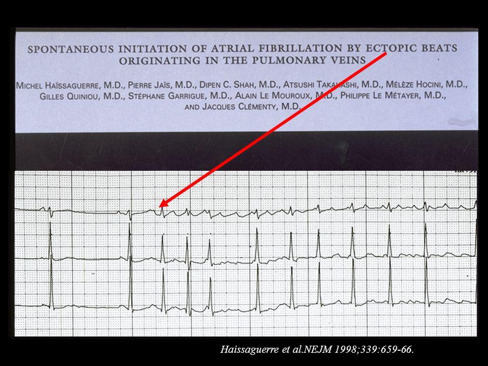 Haissaguerre et al.NEJM 1998;339:659-66.