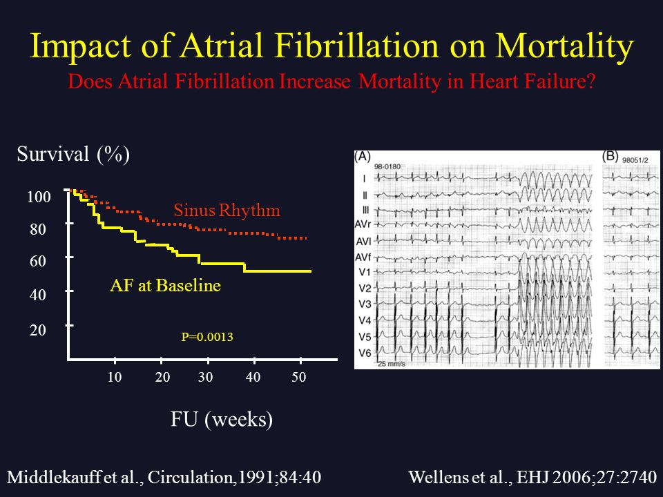 Middlekauff et al., Circulation,1991;84:40 Does Atrial Fibrillation Increase Mortality in Heart Failure? Impact of Atrial Fibrillation on Mortality We