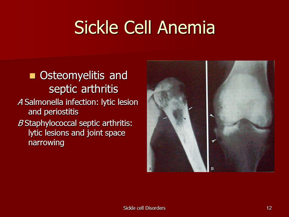 Sickle cell Disorders12 Sickle Cell Anemia Osteomyelitis and septic arthritis Osteomyelitis and septic arthritis A Salmonella infection: lytic lesion and periostitis B Staphylococcal septic arthritis: lytic lesions and joint space narrowing