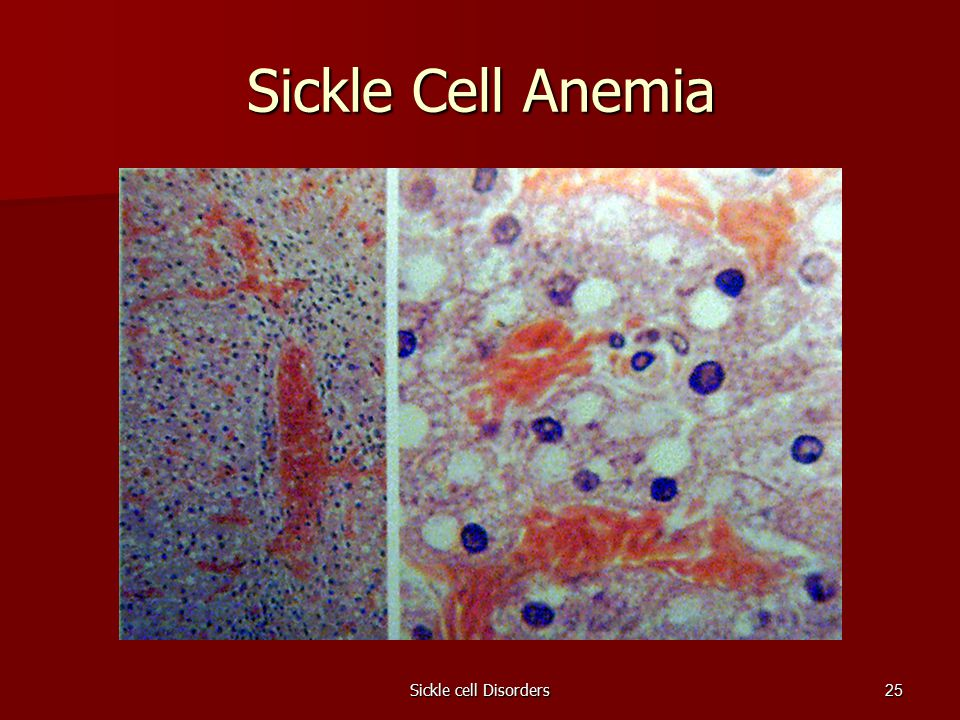 Sickle cell Disorders25 Sickle Cell Anemia