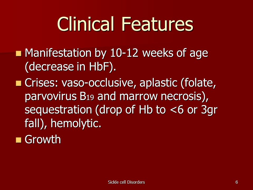 Sickle cell Disorders6 Clinical Features Manifestation by 10-12 weeks of age (decrease in HbF).