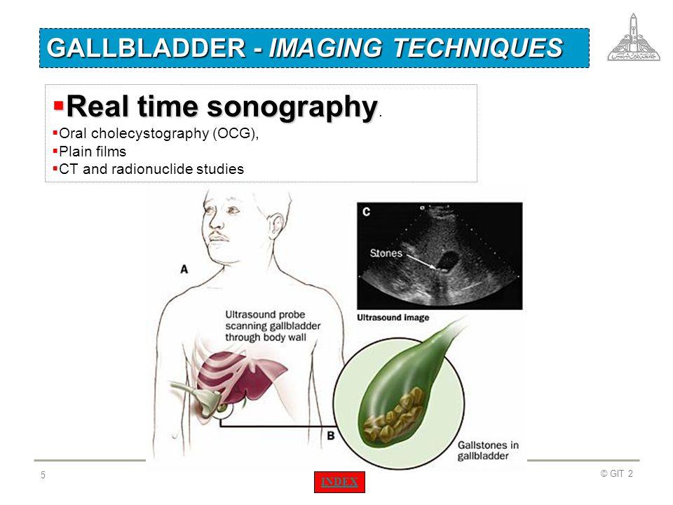 © GIT 2 126 Cancer head of pancreas Liver Pancreas body Cancer head Kidney IVC Aorta CT examination INDEX