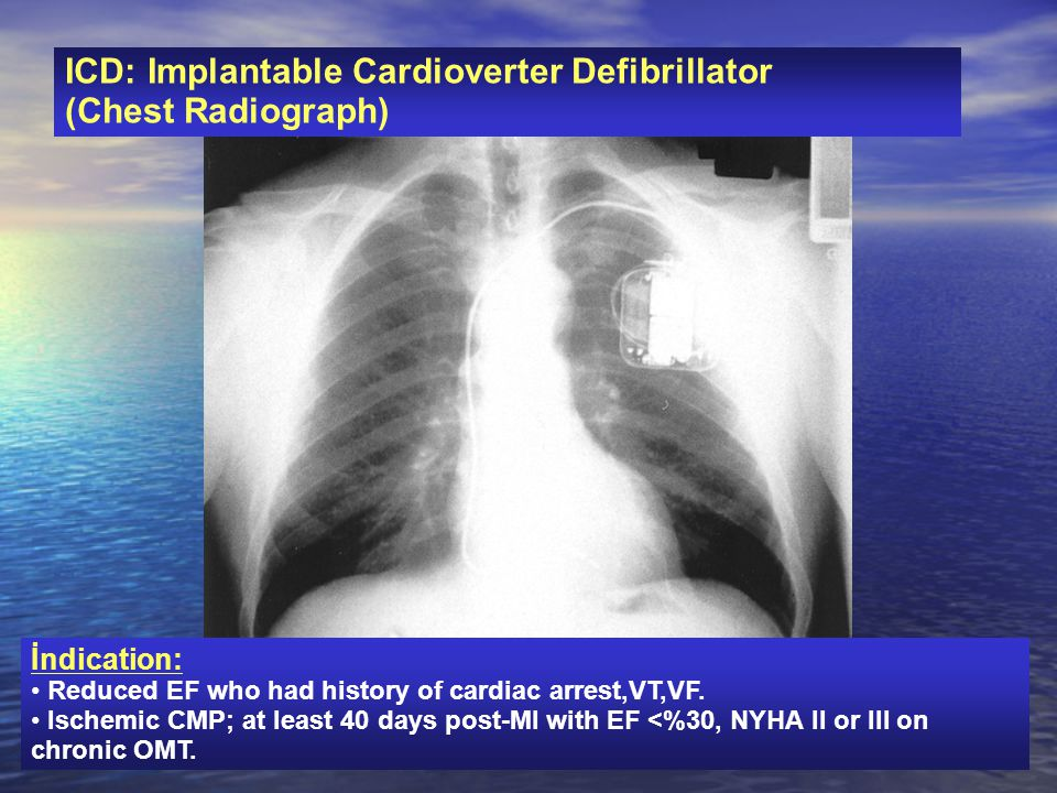 ICD: Implantable Cardioverter Defibrillator (Chest Radiograph) İndication: Reduced EF who had history of cardiac arrest,VT,VF. Ischemic CMP; at least