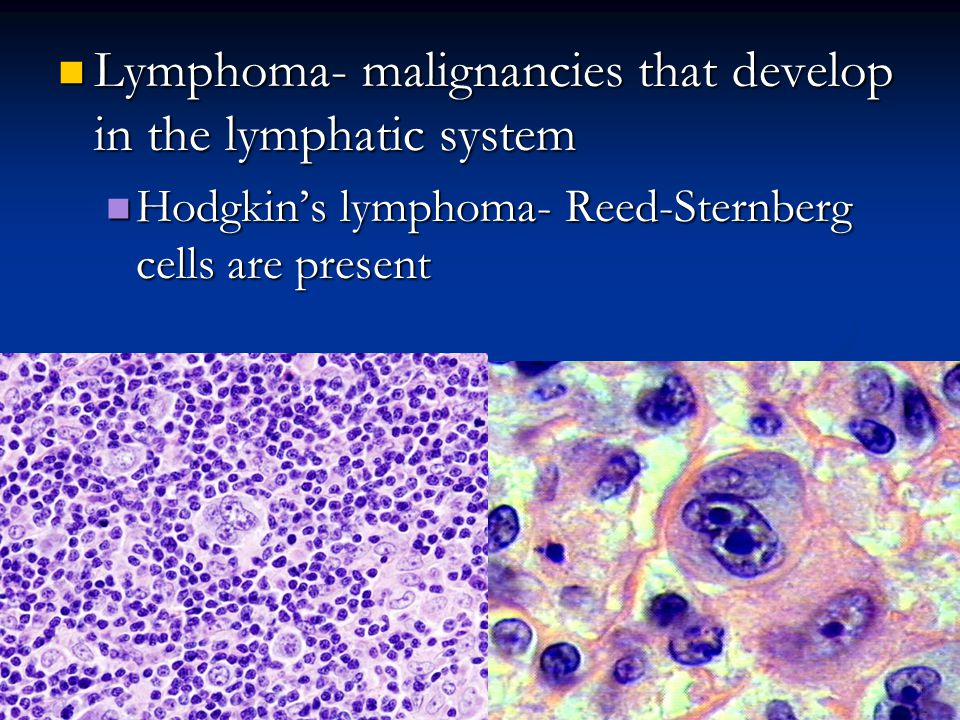 Lymphoma- malignancies that develop in the lymphatic system Lymphoma- malignancies that develop in the lymphatic system Hodgkin's lymphoma- Reed-Sternberg cells are present Hodgkin's lymphoma- Reed-Sternberg cells are present