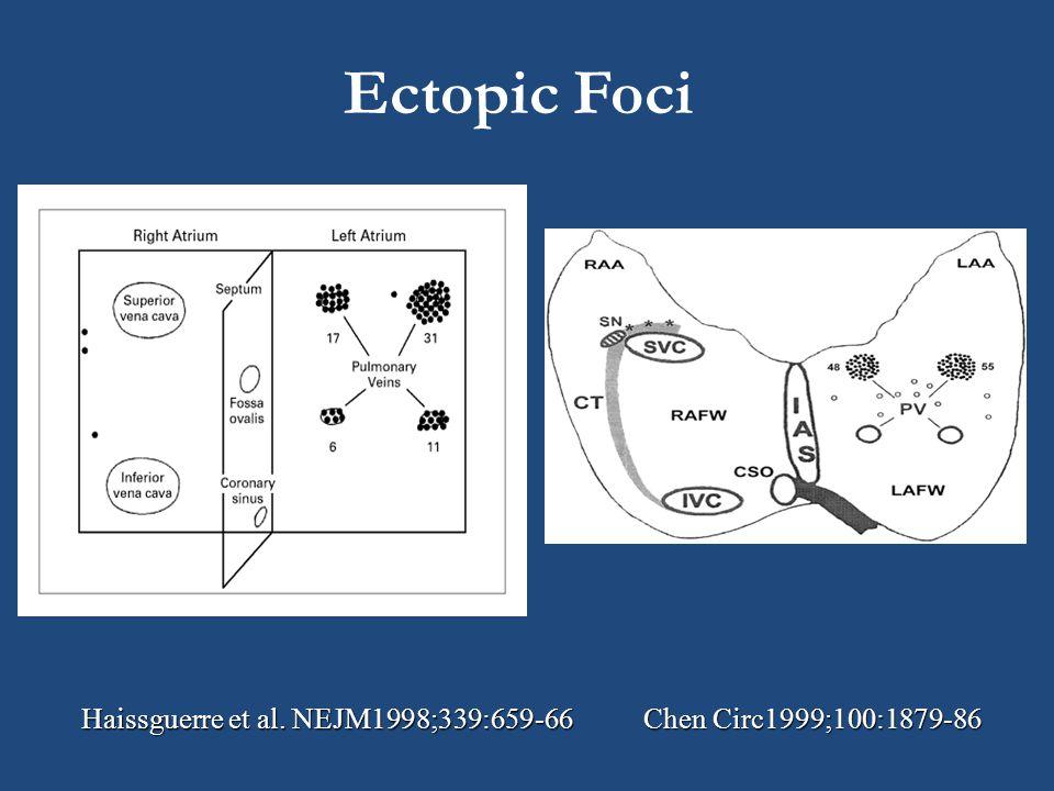 Ectopic Foci Haissguerre et al. NEJM1998;339:659-66 Chen Circ1999;100:1879-86