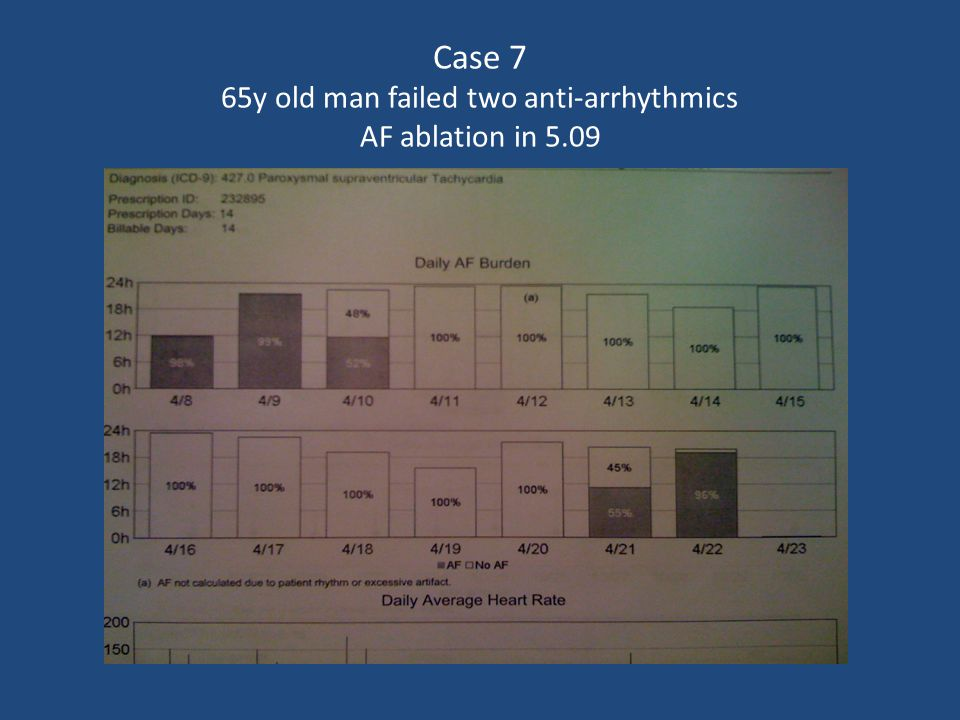 Case 7 65y old man failed two anti-arrhythmics AF ablation in 5.09