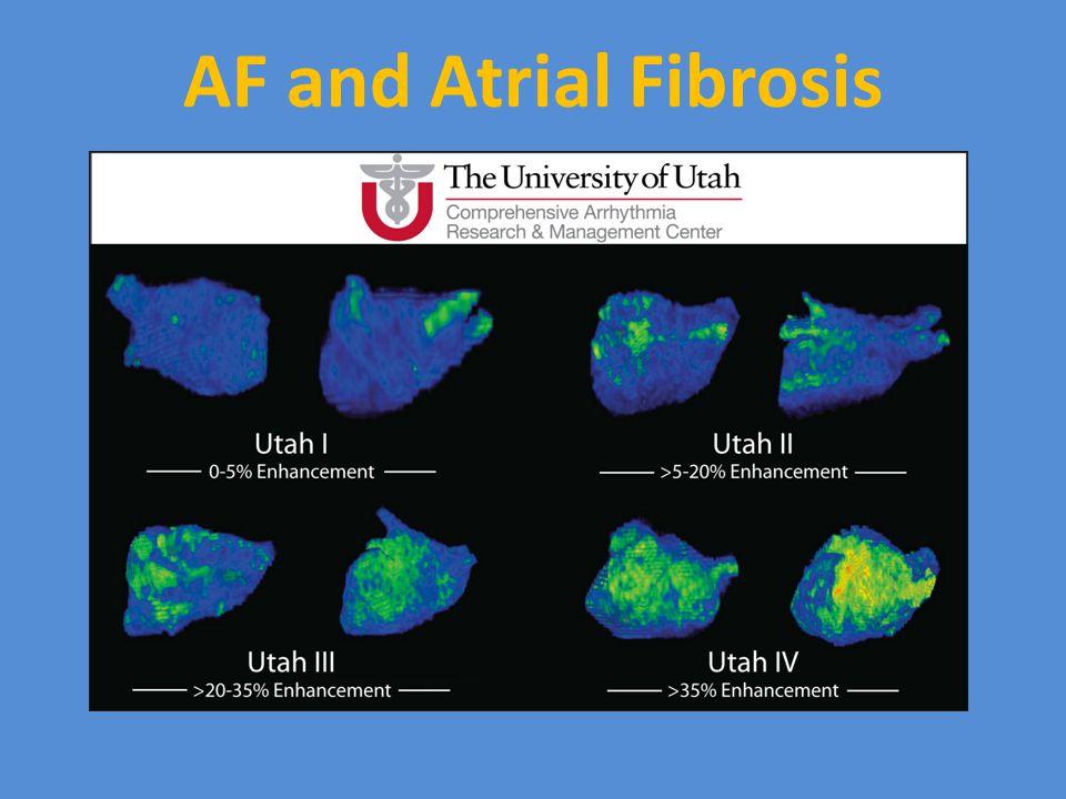 AF and Atrial Fibrosis