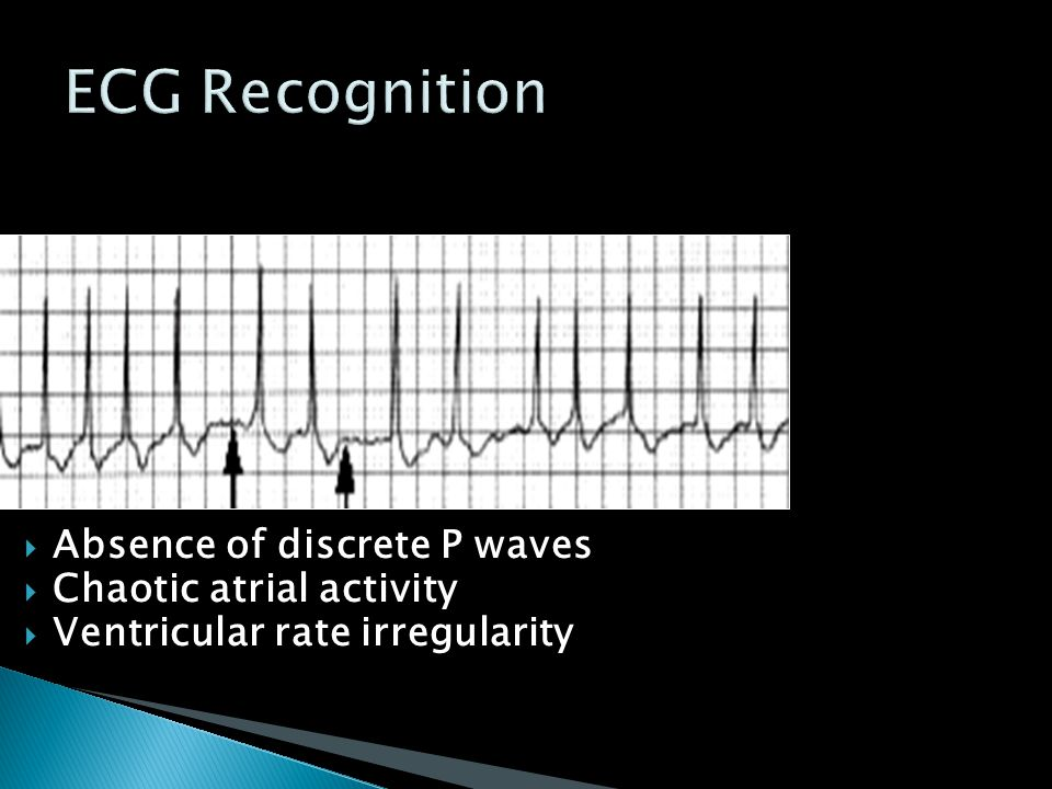  Absence of discrete P waves  Chaotic atrial activity  Ventricular rate irregularity
