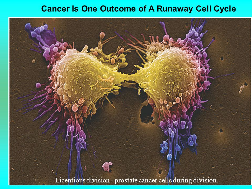 Cancer Is One Outcome of A Runaway Cell Cycle Licentious division - prostate cancer cells during division.