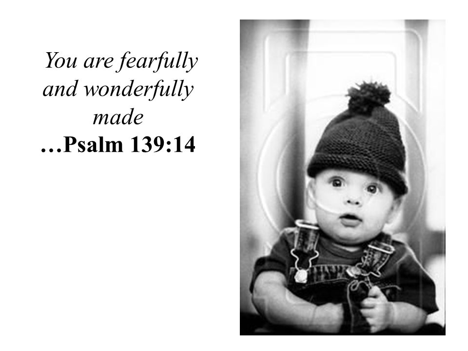 You are fearfully and wonderfully made …Psalm 139:14