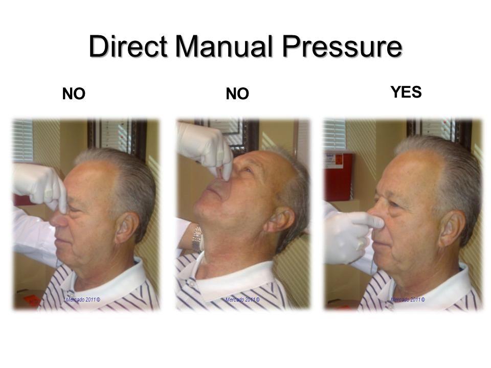 Direct Manual Pressure NO YES NO Mercado 2011 ©