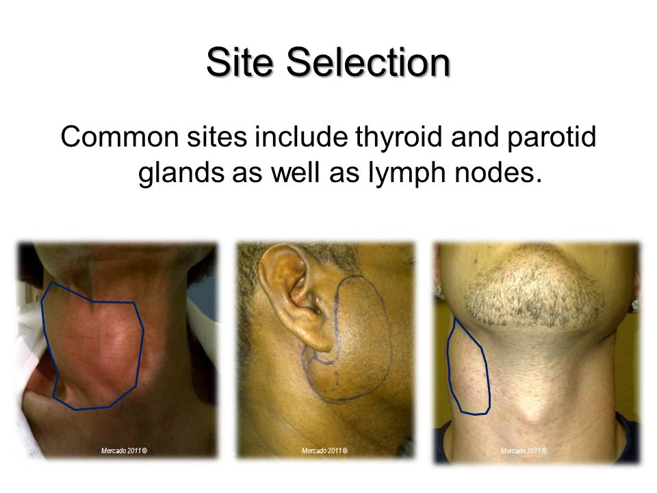 Site Selection Common sites include thyroid and parotid glands as well as lymph nodes. Mercado 2011 ©