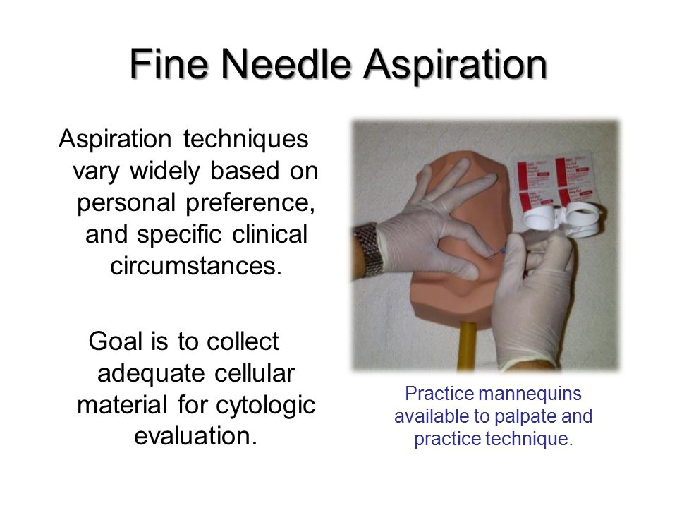 Fine Needle Aspiration Aspiration techniques vary widely based on personal preference, and specific clinical circumstances. Goal is to collect adequat