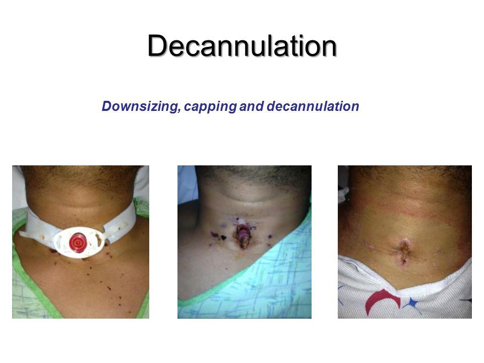 Decannulation