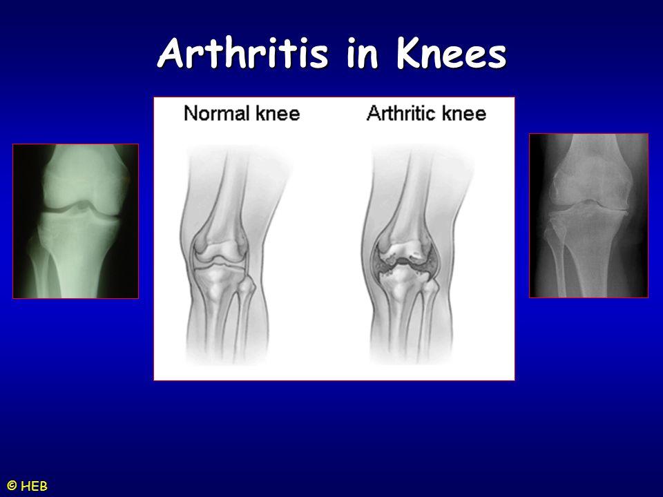 © HEB Arthritis in Knees