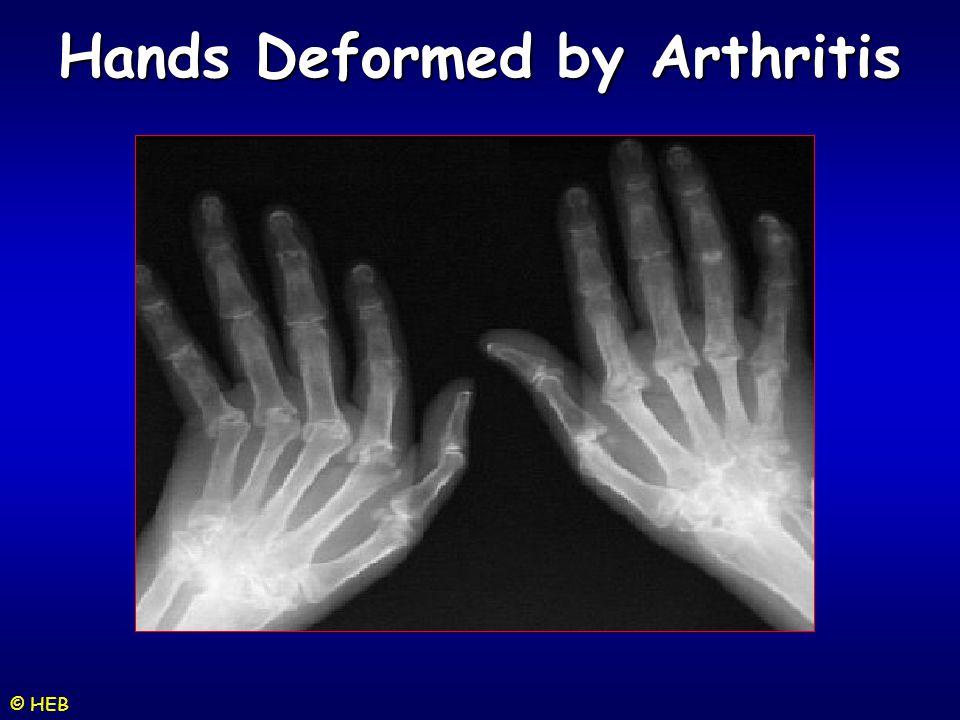 © HEB Hands Deformed by Arthritis