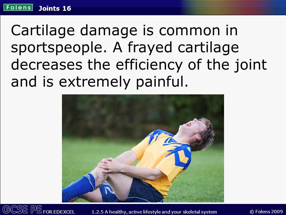 © Folens 2009 FOR EDEXCEL 1.2.5 A healthy, active lifestyle and your skeletal system Cartilage damage is common in sportspeople.