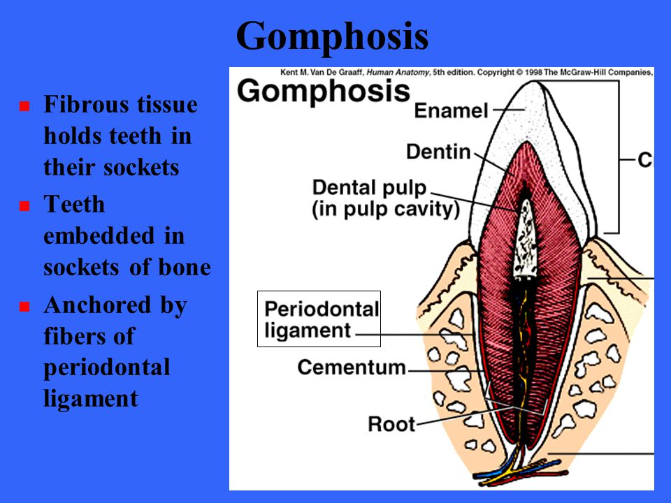 Gomphosis Fibrous tissue holds teeth in their sockets Teeth embedded in sockets of bone Anchored by fibers of periodontal ligament