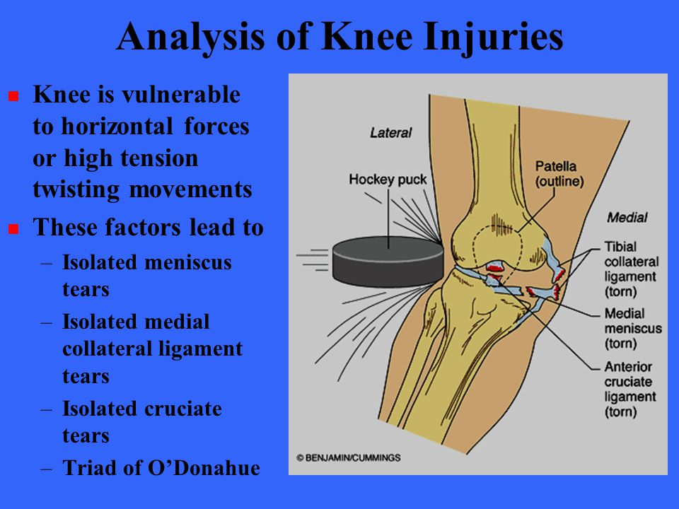 Analysis of Knee Injuries Knee is vulnerable to horizontal forces or high tension twisting movements These factors lead to –Isolated meniscus tears –I