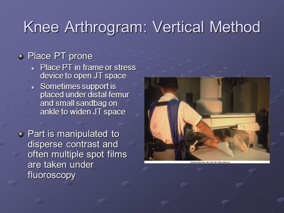 Knee Arthrogram: Vertical Method Place PT prone Place PT in frame or stress device to open JT space Place PT in frame or stress device to open JT space Sometimes support is placed under distal femur and small sandbag on ankle to widen JT space Sometimes support is placed under distal femur and small sandbag on ankle to widen JT space Part is manipulated to disperse contrast and often multiple spot films are taken under fluoroscopy