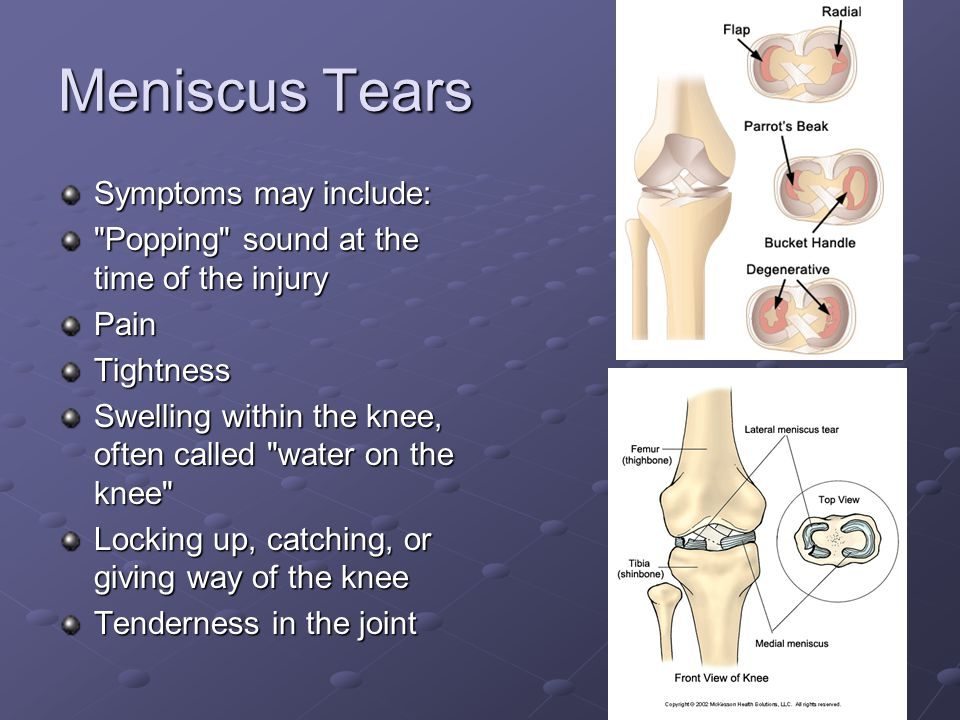 Meniscus Tears Symptoms may include: Popping sound at the time of the injury PainTightness Swelling within the knee, often called water on the knee Locking up, catching, or giving way of the knee Tenderness in the joint