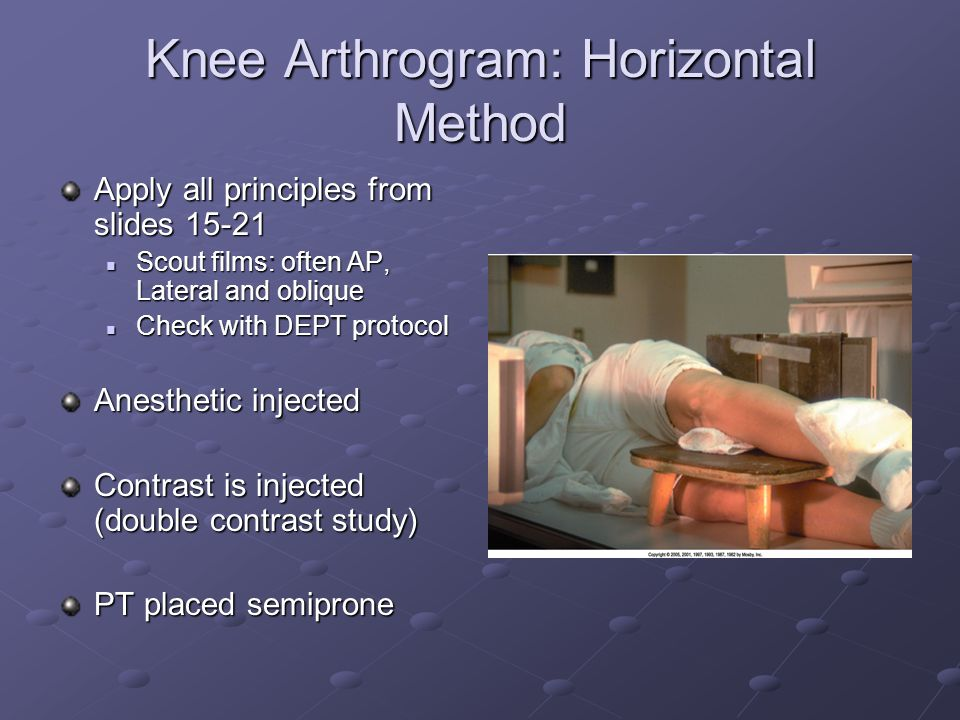 Knee Arthrogram: Horizontal Method Apply all principles from slides 15-21 Scout films: often AP, Lateral and oblique Scout films: often AP, Lateral and oblique Check with DEPT protocol Check with DEPT protocol Anesthetic injected Contrast is injected (double contrast study) PT placed semiprone